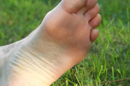 Vondt under foten